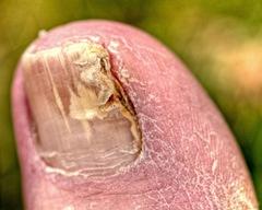 Toenails fungus before laser
