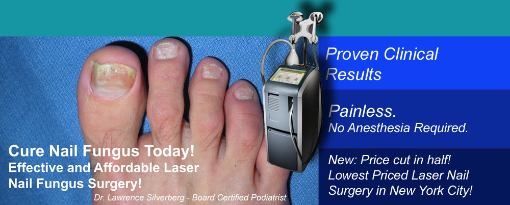 Best Priced Laser Toenail Fungus Treatment in NYC